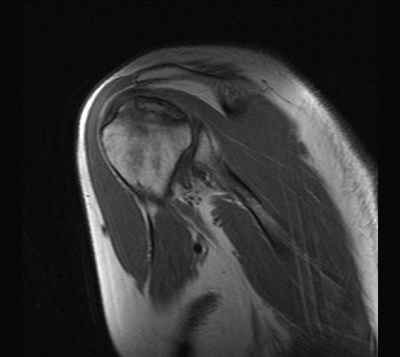 Где можно сделать укол в сустав дипроспан